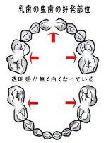乳歯の虫歯の好発部位(白い虫歯)